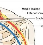 Mengenal Jenis Cedera Atlet Esport: Thoracic Outlet Syndrome