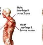 Mengenal Jenis Cedera Atlet Esport: Upper Crossed Syndrome