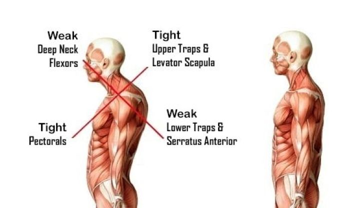 Ilustrasi Upper Crossed Syndrome.