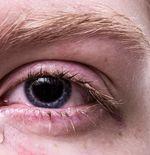 Kenali Gejala pada Mata yang Mengindikasikan Adanya Penyakit dalam Tubuh
